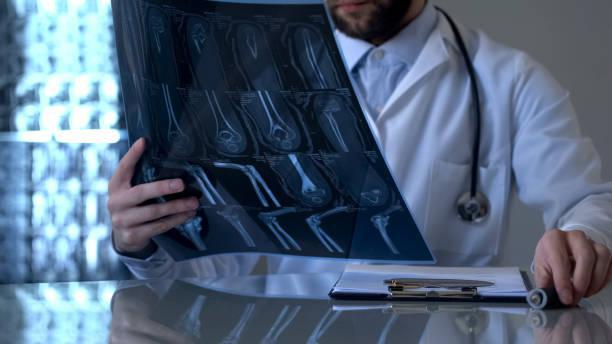 Orthopedic Surgeon Viewing Xrays for Treatment