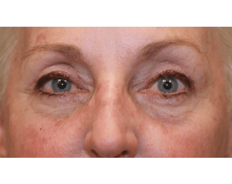 Gallery image about Upper Eyelid Ptosis