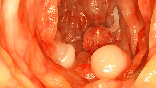 hpv of colon)