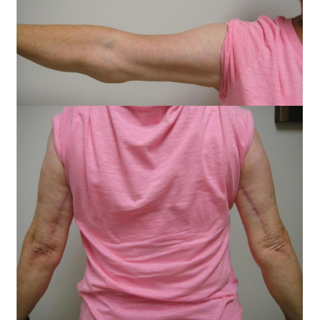 Gallery image about Lipectomy Before & After Gallery