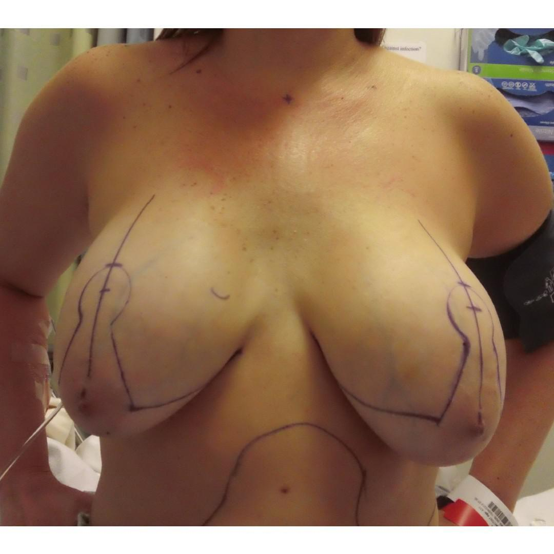 Gallery image about Mastopexy Before & After Gallery
