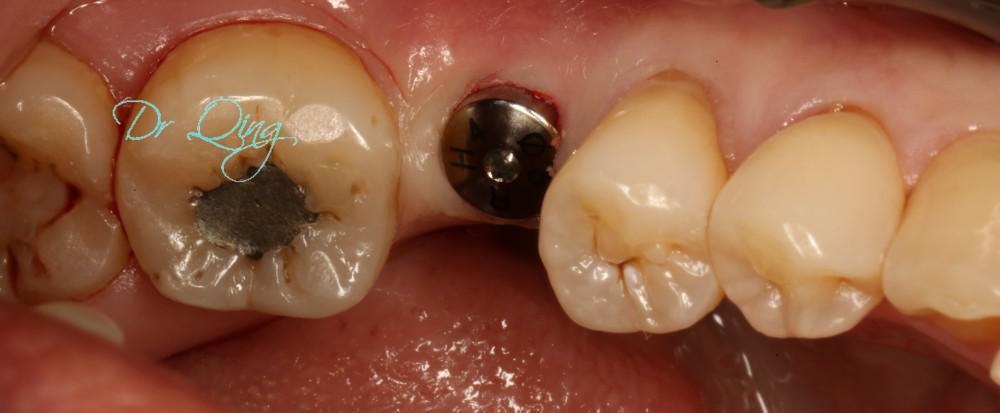 Minimally invasive dental implant