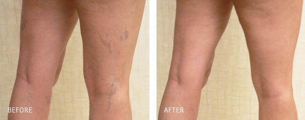Spider veins before and after treatment