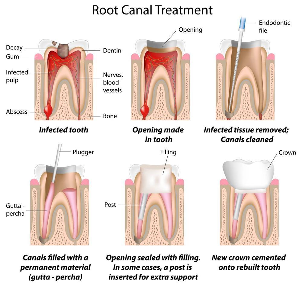 Crowns for Endodontically Treated Teeth