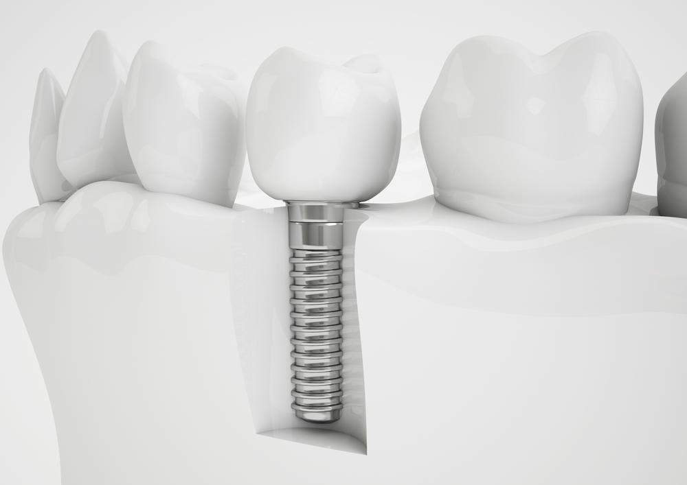 dental implant services, Dental Implants, dental implant consultation, dental implant procedure, Dental Services