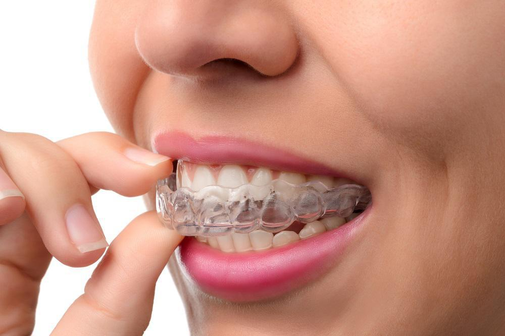 invisalign cost, braces cost, clear braces, invisalign braces, invisalign, teeth braces, ceramic braces full dentures, bad br