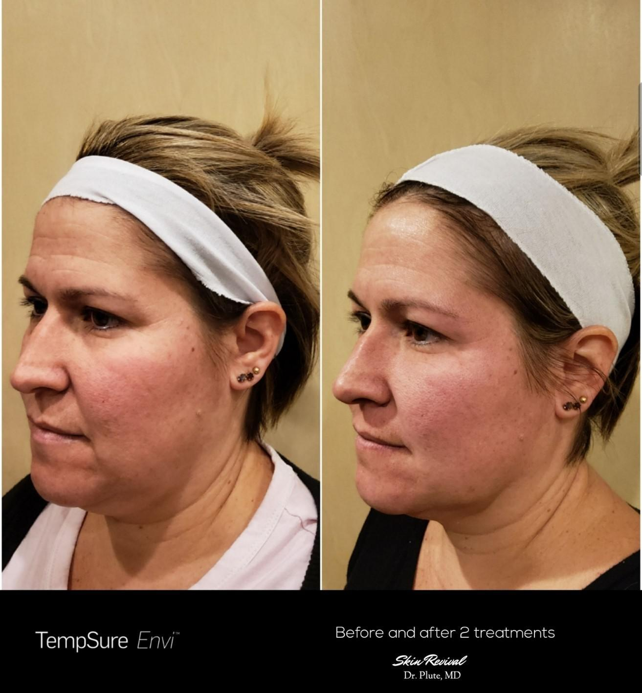 Gallery image about Facial Skin Tightening