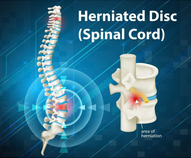 This diagram shows what a herniated disc may look like. Red this blog post to learn more about non-surgical options for disc