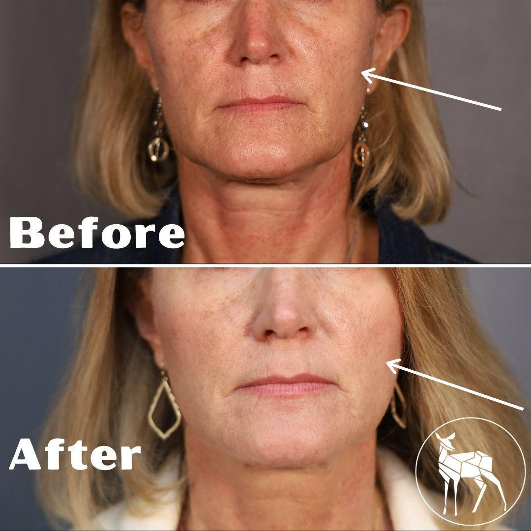 Gallery image about Before & After IPL Laser Treatment