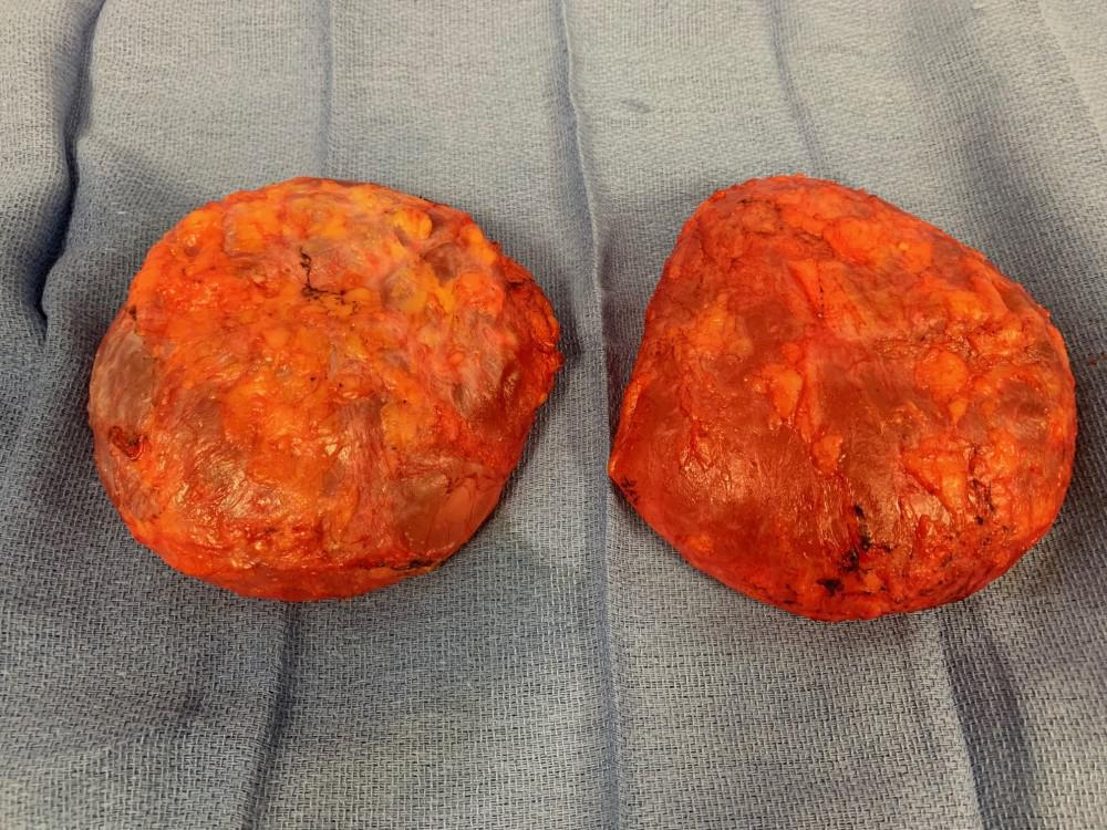 Bilateral en bloc capsulectomy.  Both capsules are removed intact, with the breast implant contained within.
