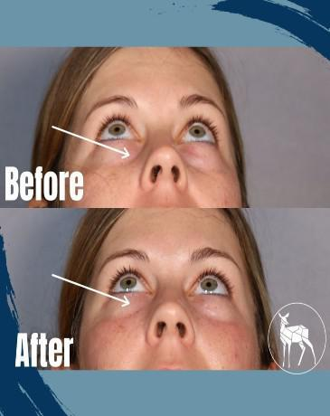 Gallery image about BEFORE AND AFTER UNDER EYE FILLER