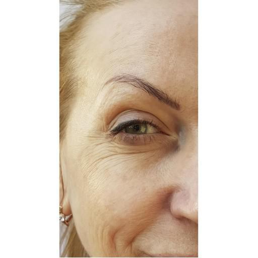 Gallery image about Botox Before and After