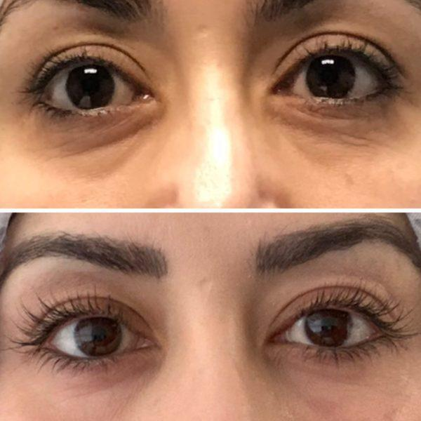 Gallery image about wrinkles b&a