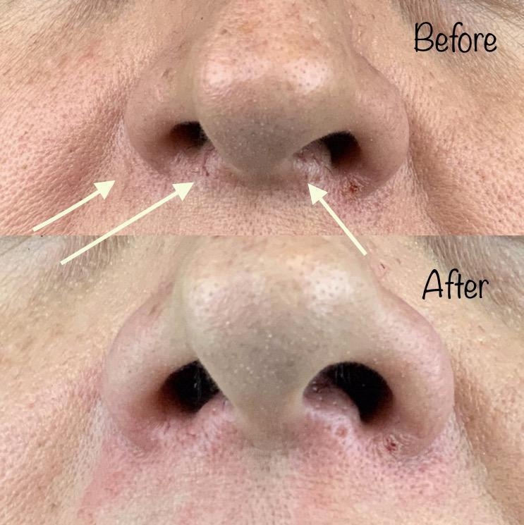 Gallery image about facial veins b&a
