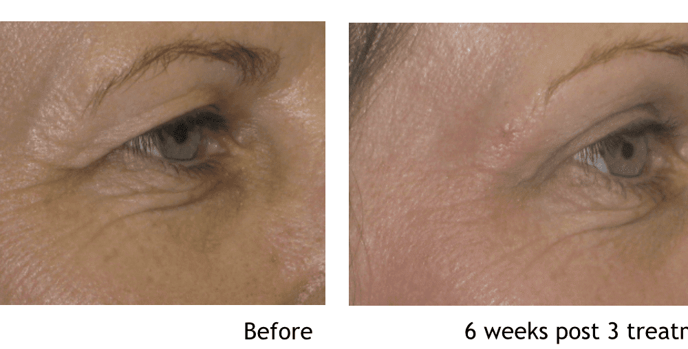 Gallery image about facial rejuvenation b&a