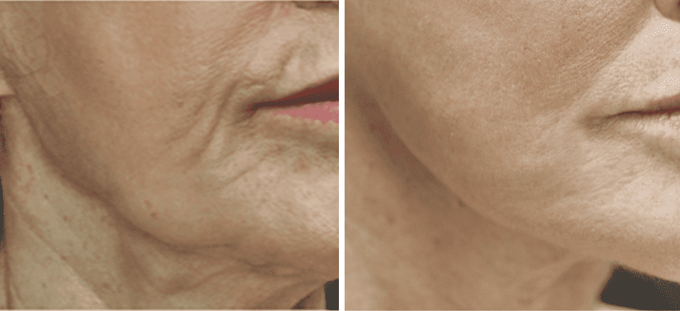 Gallery image about non-surgical facelift b&a