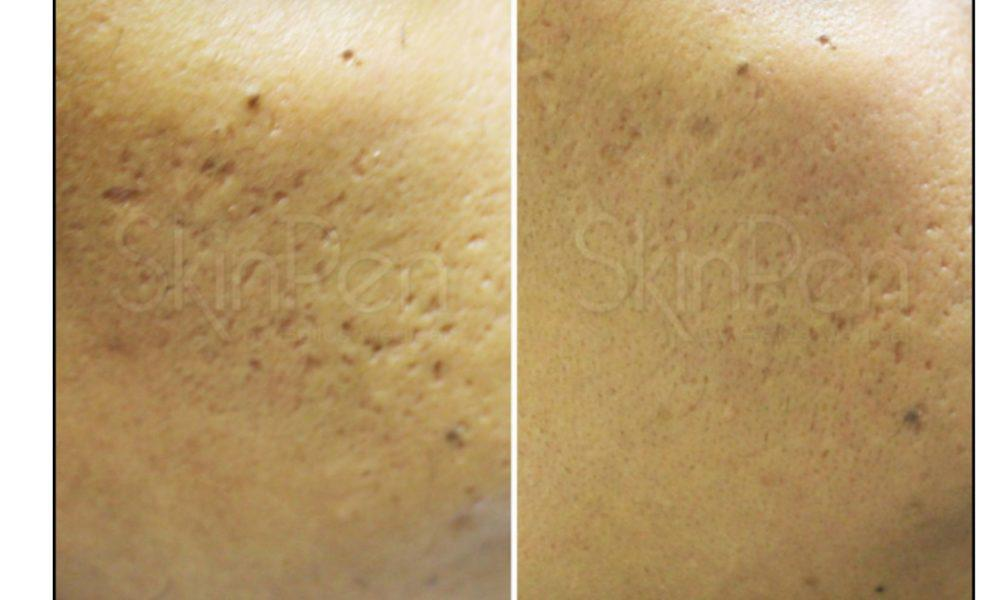 Gallery image about pores and acne scars b&a