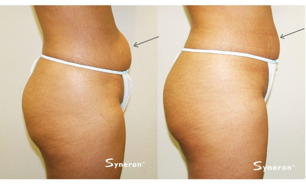 Gallery image about body contouring b&a