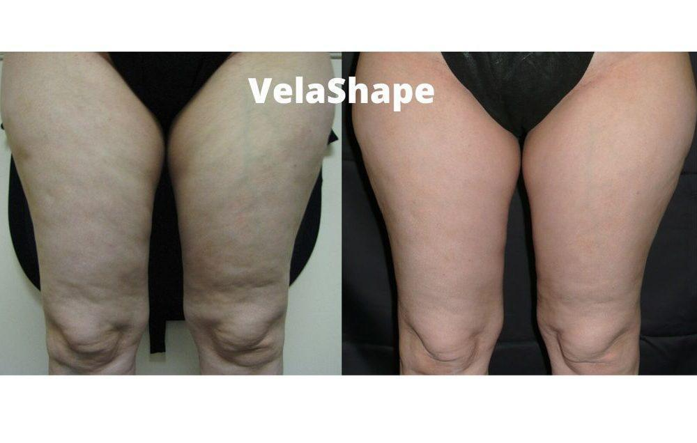 Gallery image about cellulite reduction b&a