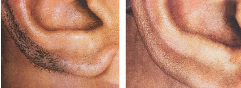 Gallery image about laser hair removal b&a