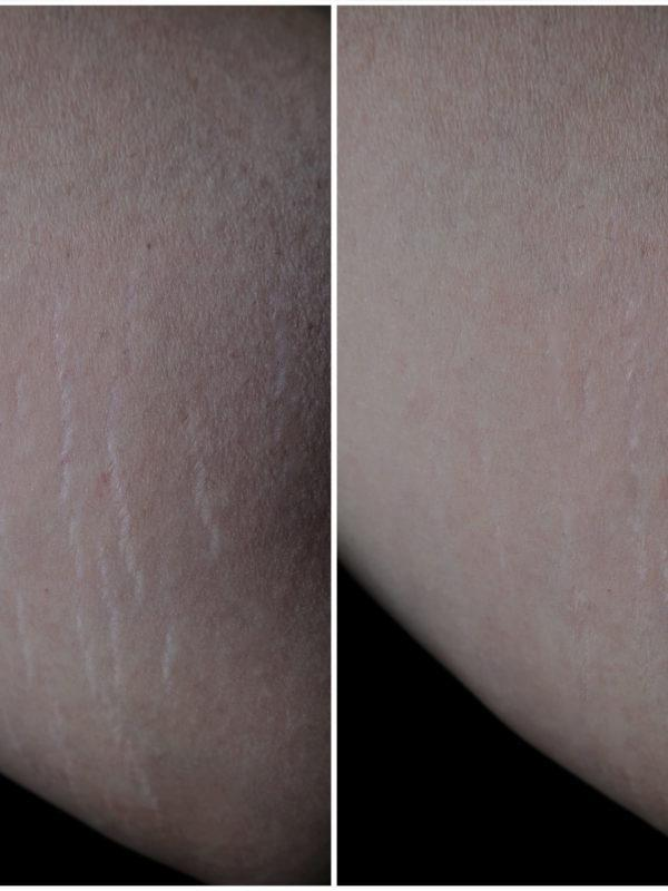 Gallery image about stretch marks b&a