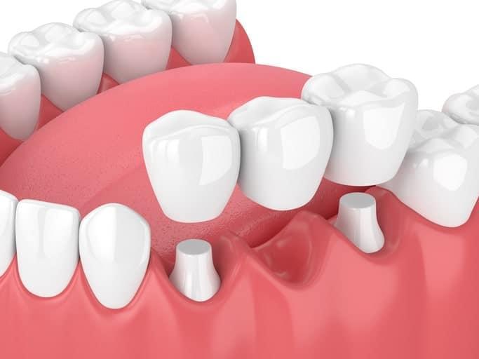 teeth whitening, temporary veneers, cosmetic dentist, gum disease, good oral hygiene, dental veneers, medical advice, root ca