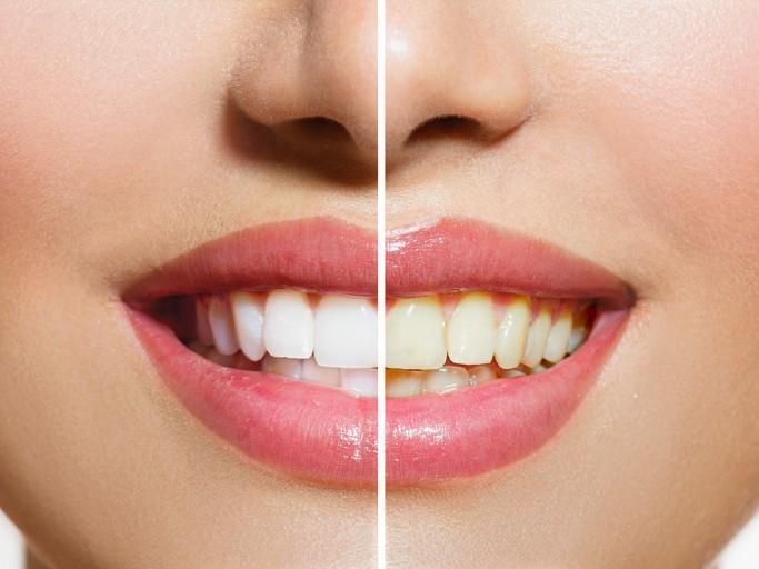dental bridges, dental implant specialist nyc, cosmetic dentistry nyc, affordable dental implants nyc, implant dentistry ,den