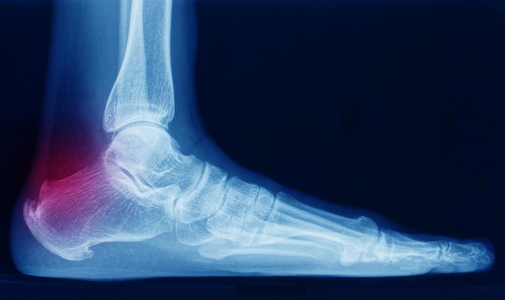 Achilles Tendinitis with 'bone spur'