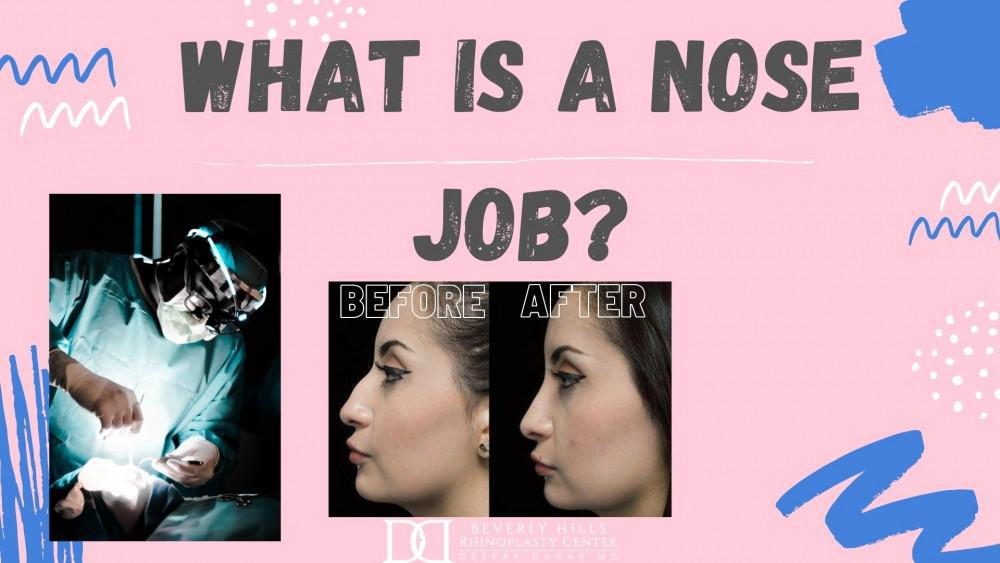 what is a nose job? before and after dr. dugar