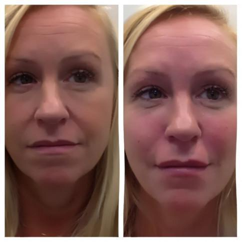 Gallery image about Vampire Facelift Before & After Gallery