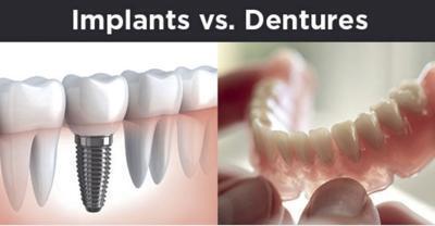 Implants vs. Dentures