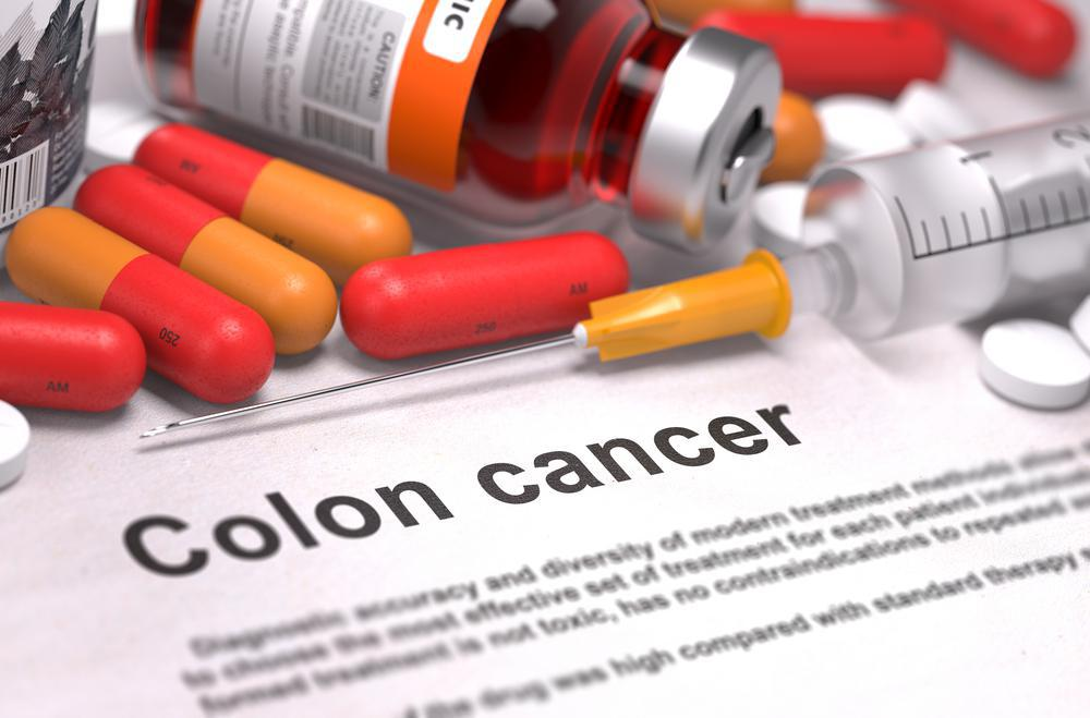 5 Steps That Can Reduce Your Risk for Colon Cancer