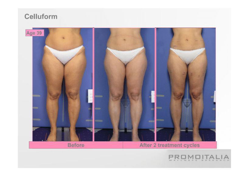 Gallery image about Celluform before & After