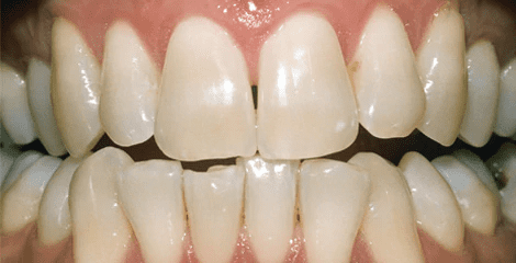 Gallery image about Zoom Teeth Whitening Before & After