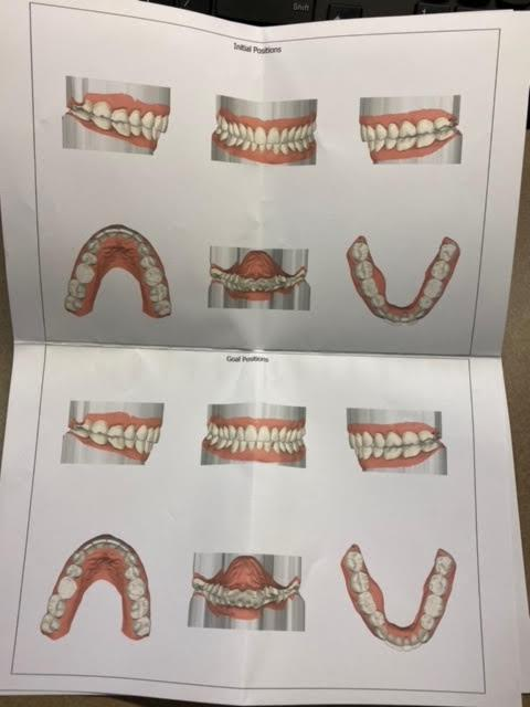 Gallery image about Aligner Gallery