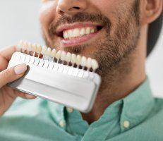 click here to learn more about Veneers