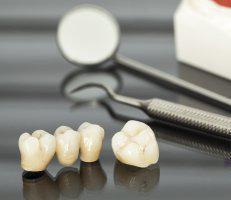 click here to learn more about Crowns and Bridges
