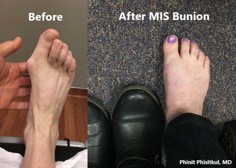 Examples of Pre and Post MIS Bunion in a patient