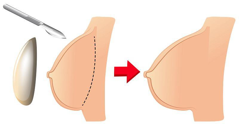Teardrop vs. Round Breast Implants