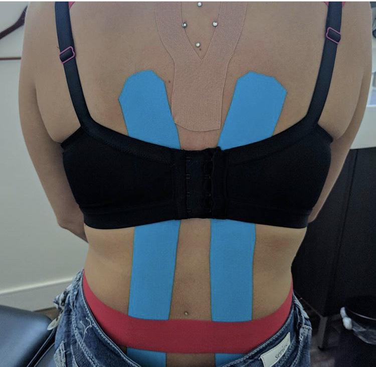 KT tape for low back pain