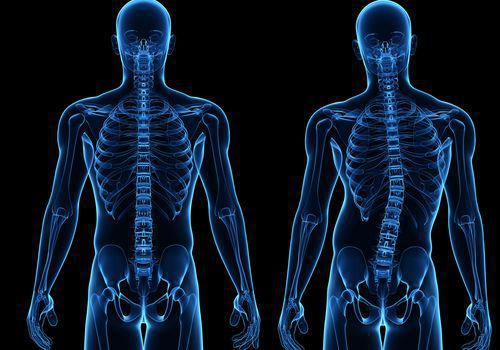 Laurel, Md Chiropractor for Scoliosis