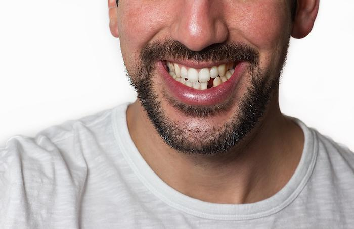 Why You Should Always Replace a Missing Tooth