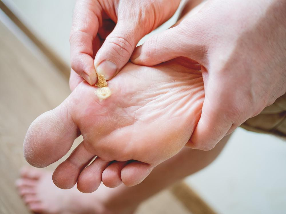foot warts between toes)