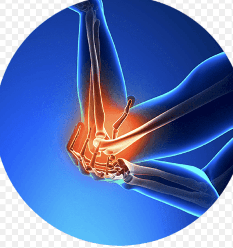 Distal Biceps Tendon Rupture