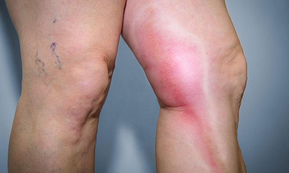 Thrombophlebitis, phlebitis, leg pain, varicose veins, varicose vein complications, vein expert, vein specialist, vein doctor