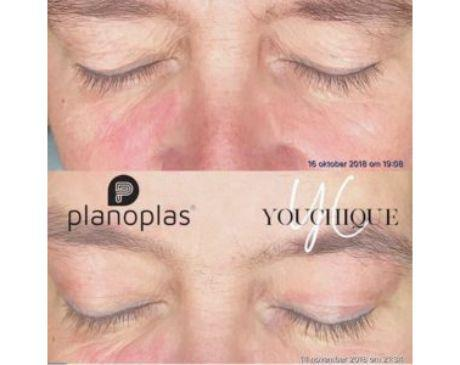 Gallery image about Before & After- Plasma