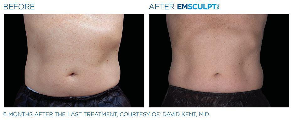 Gallery image about EMSCULPT NEO - Before & After