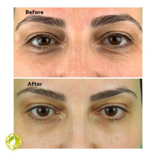 Gallery image about eyebrow lift b&a