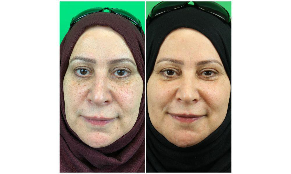 Gallery image about hyperpigmentations b&a