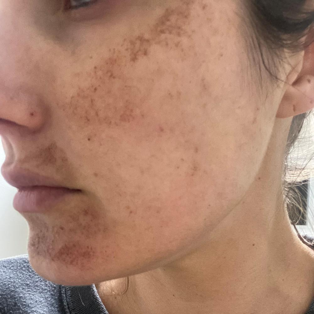 Treated skin 4 days after Intense Pulsed Light Treatment